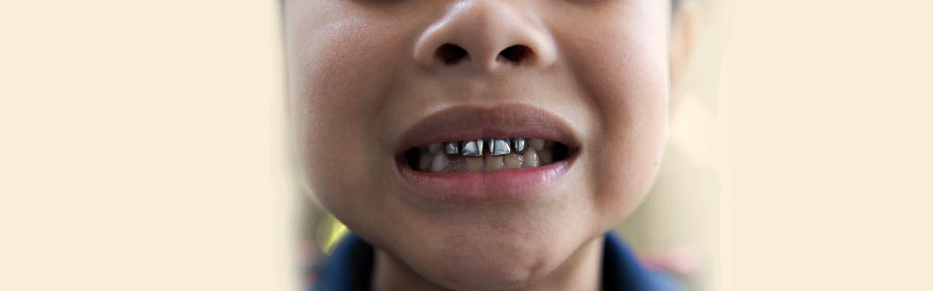 Is Mercury-safe Dentistry the Best Way to Go? Here's All You Need to Know